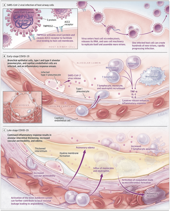 Pathophysiology, Transmission, Diagnosis, and Treatment of Coronavirus Disease 2019 (COVID-19).figure2.png