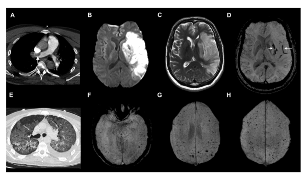 The emerging spectrum of COVID-19 neurology: clinical, radiological and laboratory findings.figure3.png